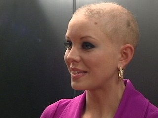 Hair Loss  Chemotherapy on Suggest That Using A Cold Cap During Chemo Could Prevent Hair Loss