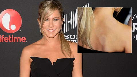 gty jennifer aniston cupping marks thg 130417 wblog Jennifer Aniston: No Wedding Dress Picked