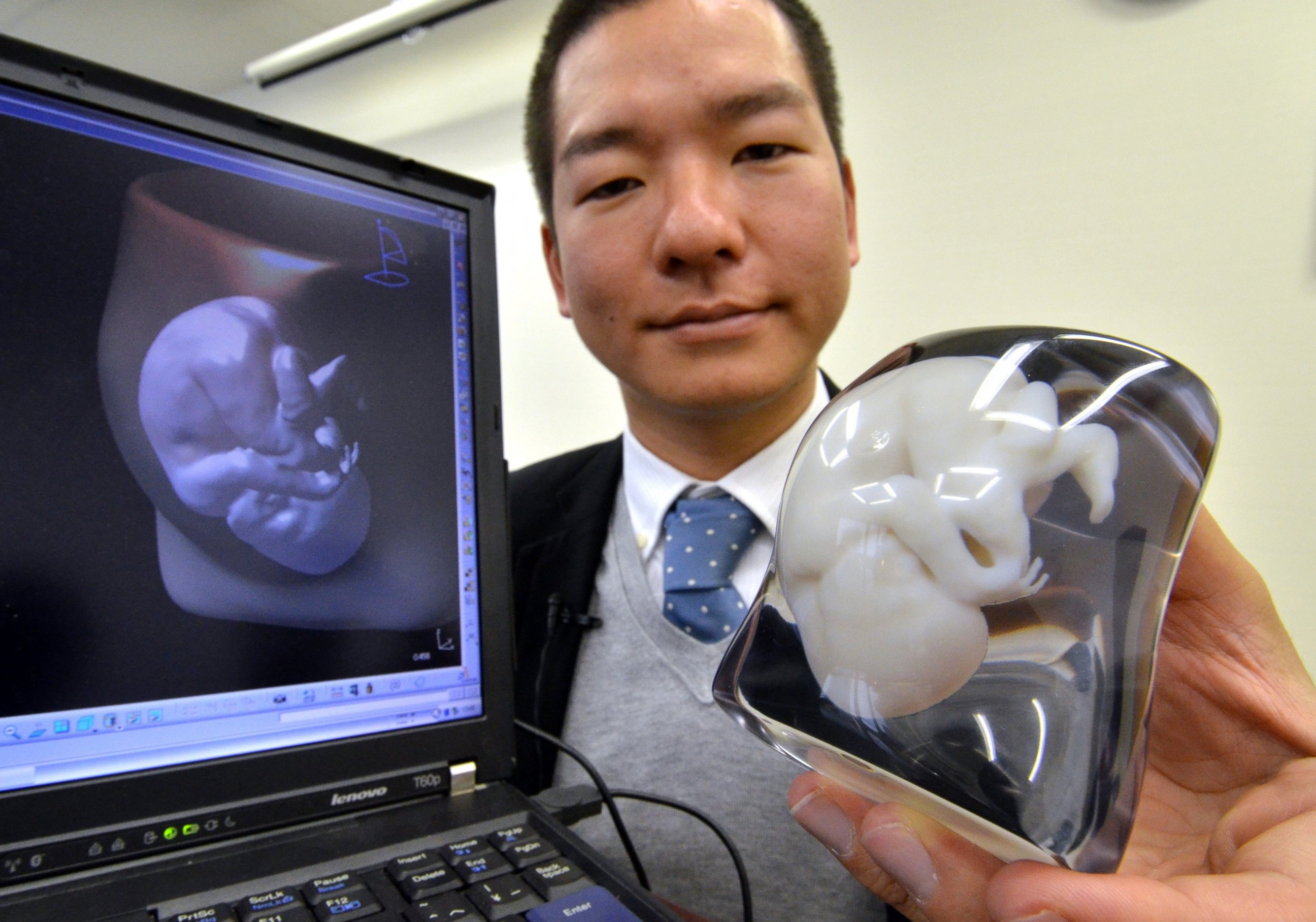 GTY 3d fetus jef 130722 3 D Printer Makes Model Memento of Fetus for Parents
