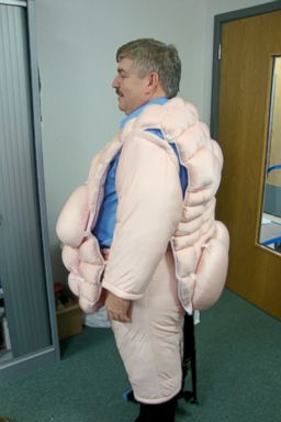 HT hospital worker fat suit jef 131231 2x3 384 Hospital Staffers Wear Fat Suit to Help With Treatment of Obese