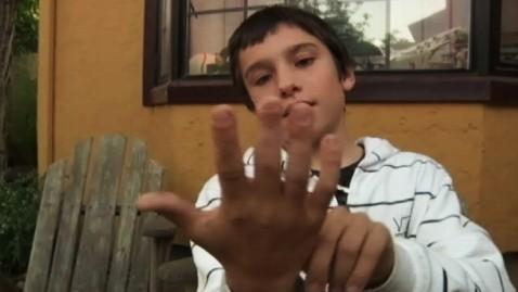 abc kgo insurance kb 130124 wblog Boys Severed Finger Leads to Insurance Angst