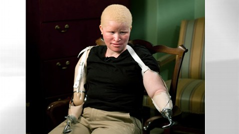 abc staford 120228 wblog Death Toll Grows for African Albinos Hunted for Witch Doctors Brews