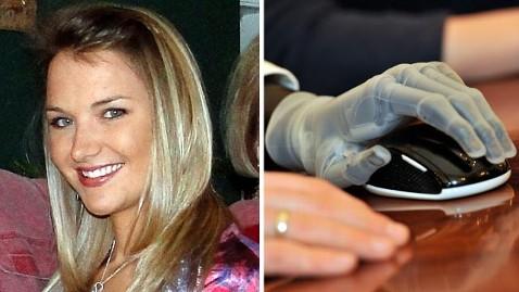 ap ht aimee copeland bionic hand jef 130517 wblog Aimee Copeland Gets Bionic Hands
