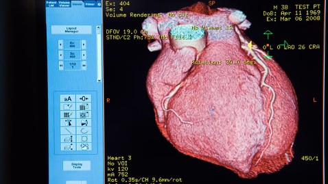 gty heart scan nt 120314 wblog Mans Failing Heart Heals Itself on Day of Emergency Transplant