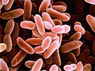 Listeria Photos and Images - ABC News