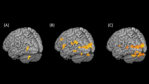ht brain activity mri dyslexia ll 120123 wblog Early Brain Changes May Indicate Dyslexia