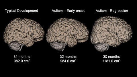 ht brain scan jef 111128 wblog  Bigger Brains in Certain Types of Autism, Study Finds