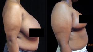 38dd breast pics