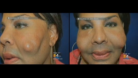 ht cement victim nt 111129 wblog Butt Boosting Doc Gave Woman Chipmunk Cheeks