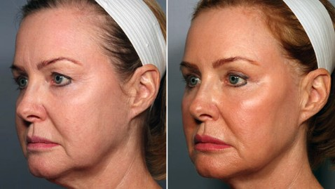 Stem Cell Facelift Before and After