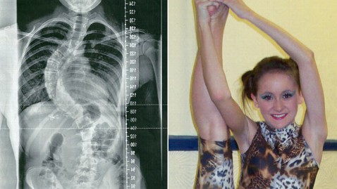 ht emily crosby nt 130228 wblog Teen Triumphs Over Curved Spine Condition
