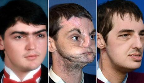 Face Transplant Patient Delights In Transformation Abc News