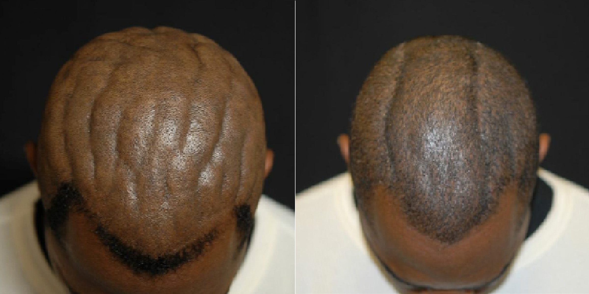 ht scalp before after kab 140307 Surgery for Brainy Scalp Changes a Mans Life