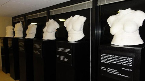 ht sculptures breast patients thg 111118 wblog Reconstruction After Mastectomy: Surgeon Works To Restore Hope