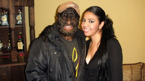 ht wolfman nd girlfriend thg 120228 wblog Wolfman Likes Hairy Face, As Do Ladies