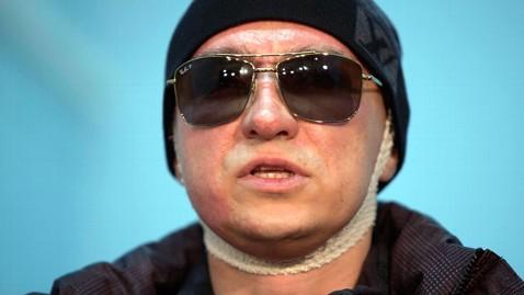 ap sergei filin jef 130305 wblog Bolshois Ivan the Terrible Held in Acid Attack