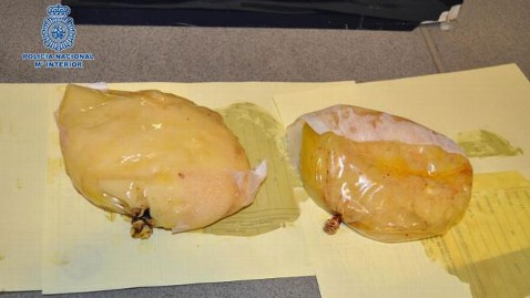 ht cocaine breast implants nt 121212 wblog Woman Arrested After Smuggling Cocaine Hidden Inside Breast Implants