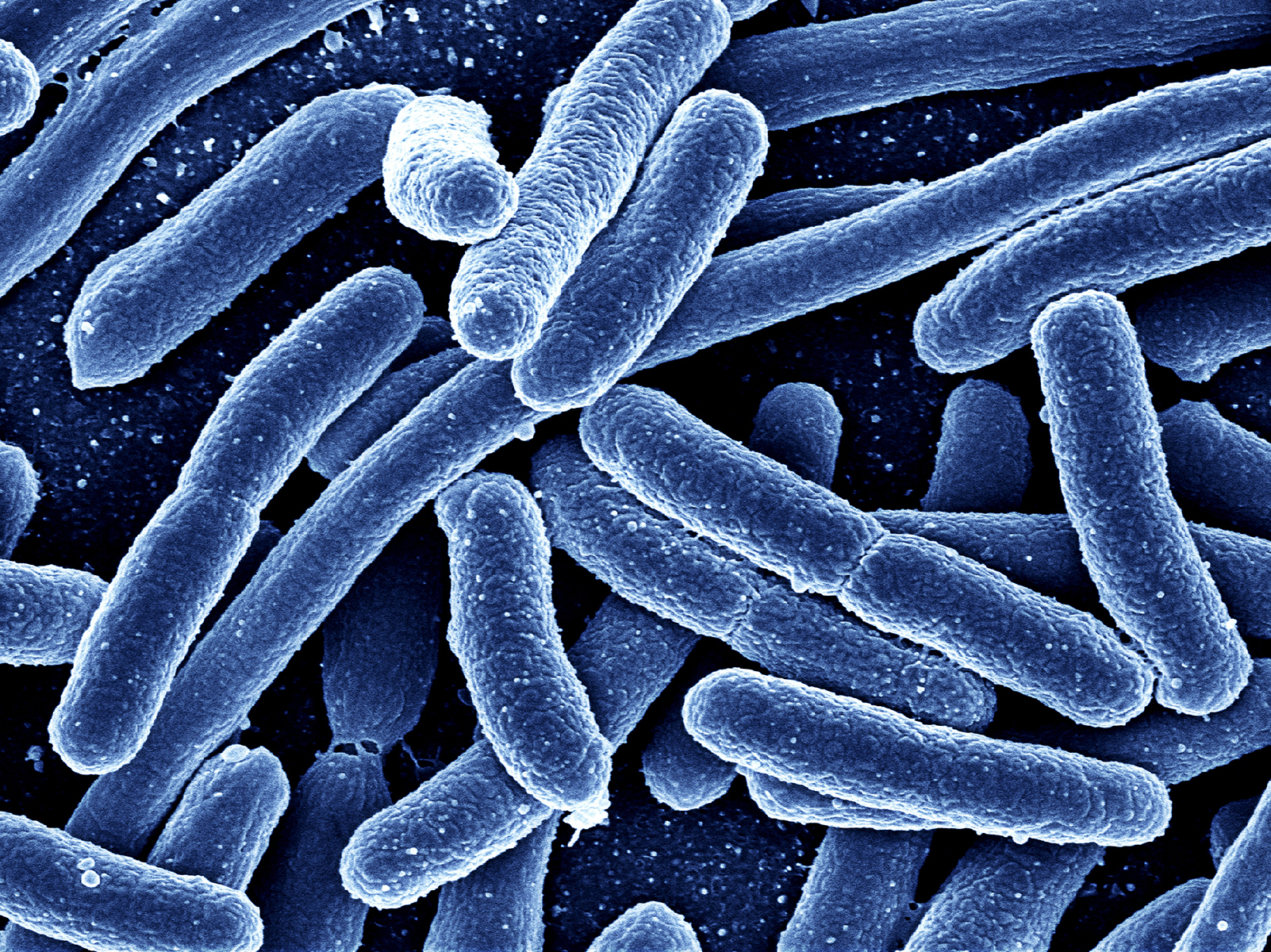 E coli Bacteria  Diseases and Conditions  Publications