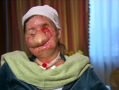 Victim of Chimp Attack Shows Destroyed Face on Oprah - ABC News