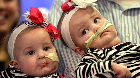 ap conjoined twins nt 121220 wblog Instant Index: Conjoined Twins Christmas Miracle
