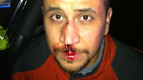 http://abcnews.go.com/images/US/ap_george_zimmerman_kb_121204_wblog.jpg