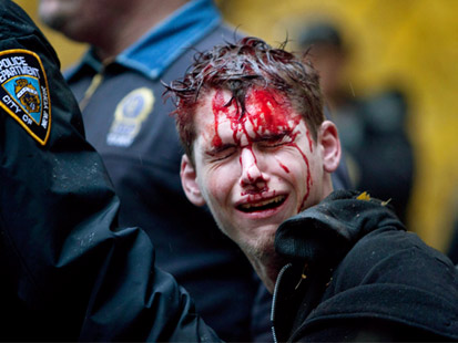 gty bloodied occupy wall street protester ll 111117 main Occupy Wall Streets Day of Disruption: WN Live Updates
