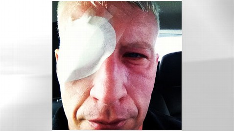 ht anderson cooper blinded mi 121205 wblog Anderson Cooper Recovers From Sunburned Eyeballs