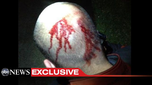 http://abcnews.go.com/images/US/ht_george_zimmerman_head_dm_120419_wmain.jpg